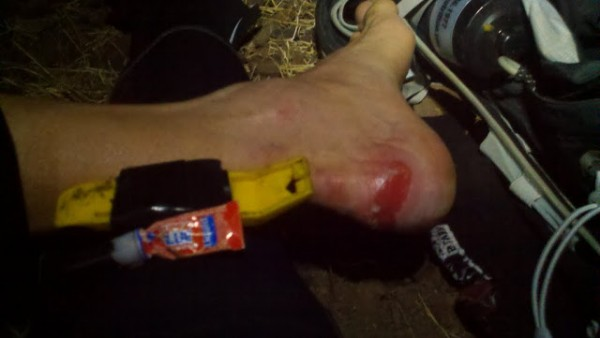 DH_blistered_foot